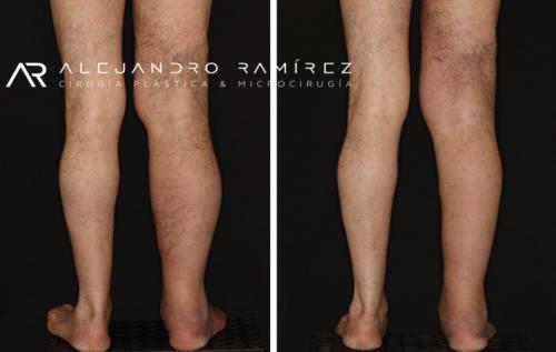 Microcirugía en Linfedema Dr. Alejandro Ramírez