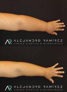 tratamiento linfedema dr alejandro ramirez