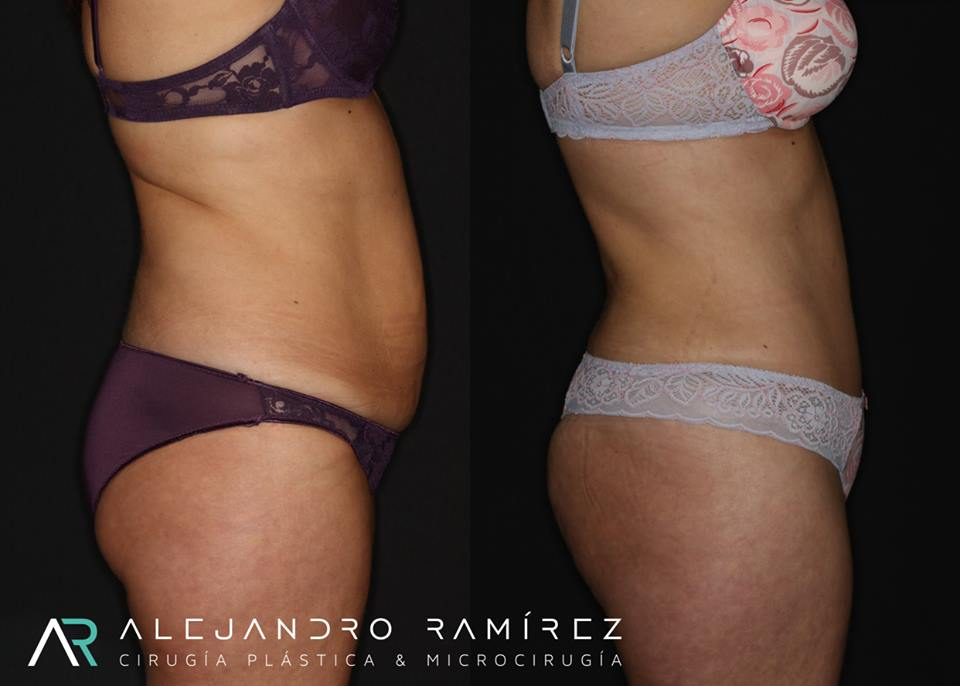 cirugia estetica corporal   Alejandro Ramírez