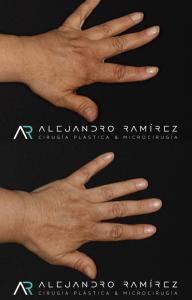 Lo que parece ser un pequeño detalle, cambia la vida de nuestros pacientes con linfedema. Una mano con menos linfedema, no sólo disminuye el riesgo de complicaciones como infecciones a repetición, sino que también es una mano más liviana, sin sensación de pesadez y con mejor apariencia. La transferencia ganglionar nos ayuda a mejorar de forma funcional y estética el linfedema de nuestros pacientes.