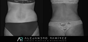 Muchas mujeres desean mejorar su cintura. Con una liposuccón bien realizada se puede mejorar la cintura notoriamente. Nuestras pacientes no solo mejoran su aspecto, sino que también se les hace más fácil utilizar la ropa que les gusta.