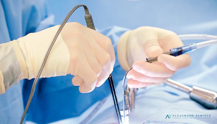 Cirugía Estética Mínimamente Invasiva