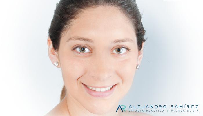Cirugía de la Sinkinesis o movimientos anormales por parálisis facial