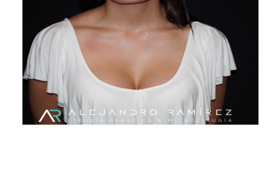 Breast augmentation, an elegant neckline.