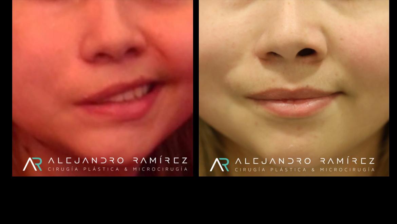 Cirugía de Reanimación Facial