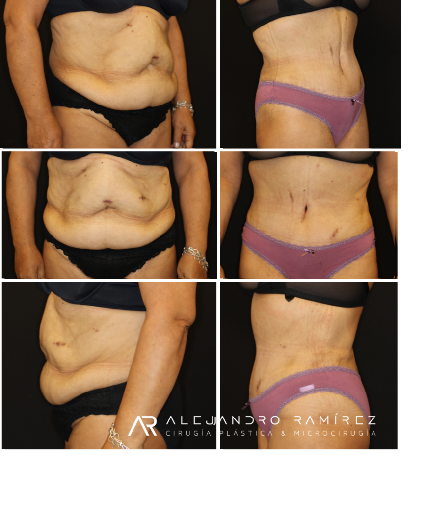 Postbariatric Lipoabdominoplasty