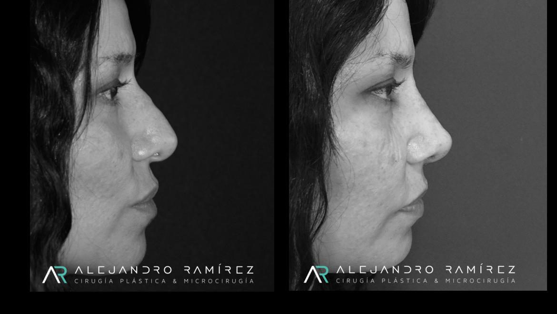 Rinoplastía después de trauma nasal