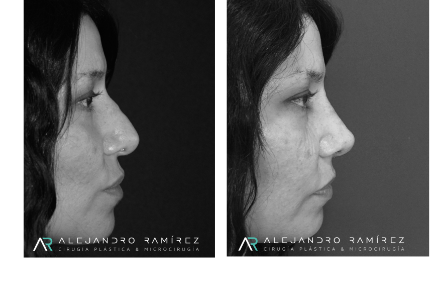Rhinoplasty after nasal trauma