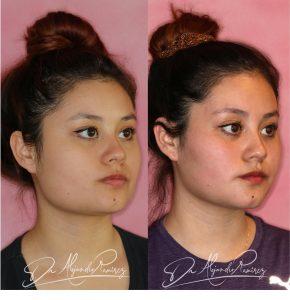 Cirugía Contorno facial Dr. Alejandro Ramírez