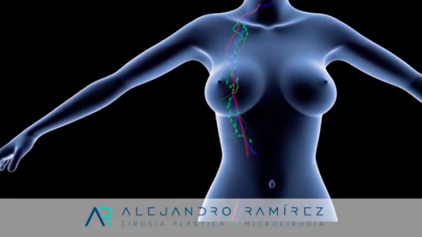 Microcirugía en linfedema: transferencia de ganglios linfáticos