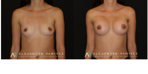The endoscopic transaxillary breast augmentation allows placing an implant through a small incision, hidden in the highest part of the armpit. The absence of a scar in the submammary groove or around the areola allows the aesthetic result to be improved elegantly, as well as to make the postoperative more comfortable.