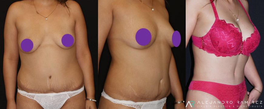 How to improve a wrong abdominoplasty