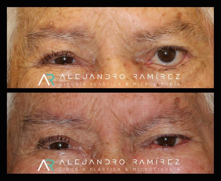 Reconstrucción facial: Microcirugía en parálisis facial