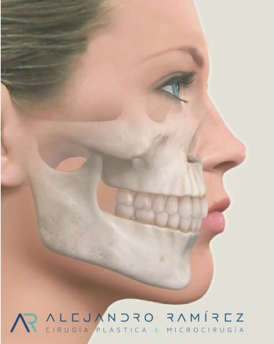 Reduction of mandibular angle