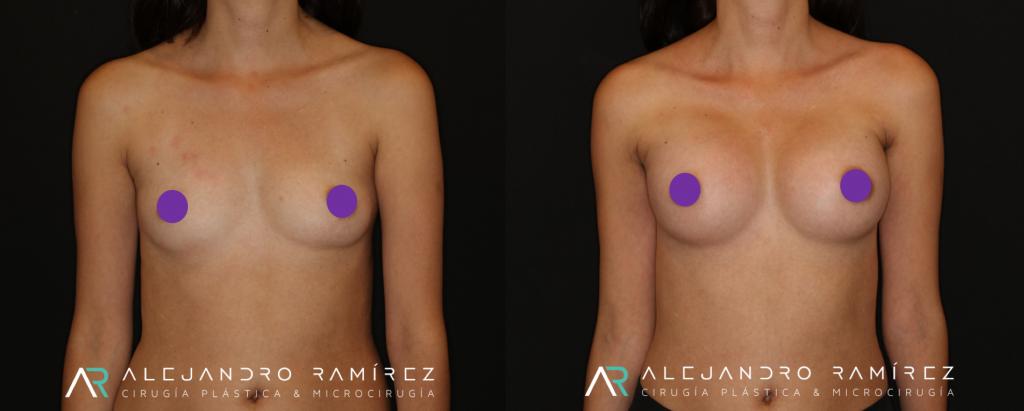 aumento mamario dr alejandro ramirez