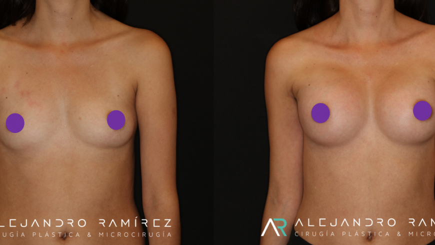 Breast augmentation without scars
