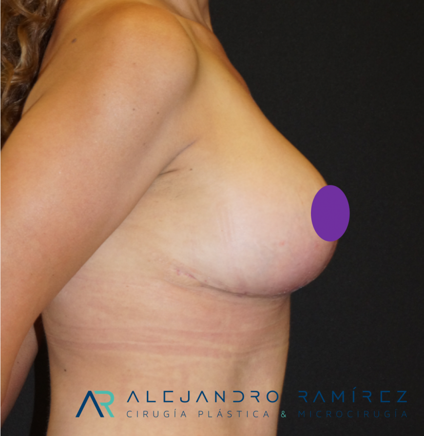 Breast lift: A change of life