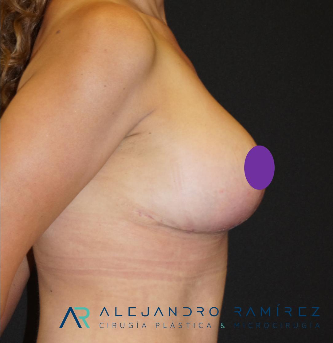 Elevación mamaria: Un cambio de vida