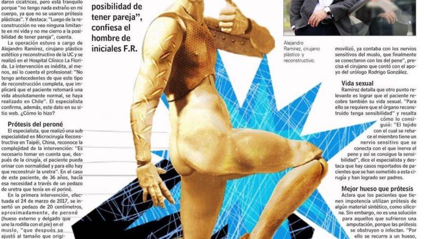 Avances en Cirugía Plástica Genital Estética y Reconstructiva: Reportaje LUN.