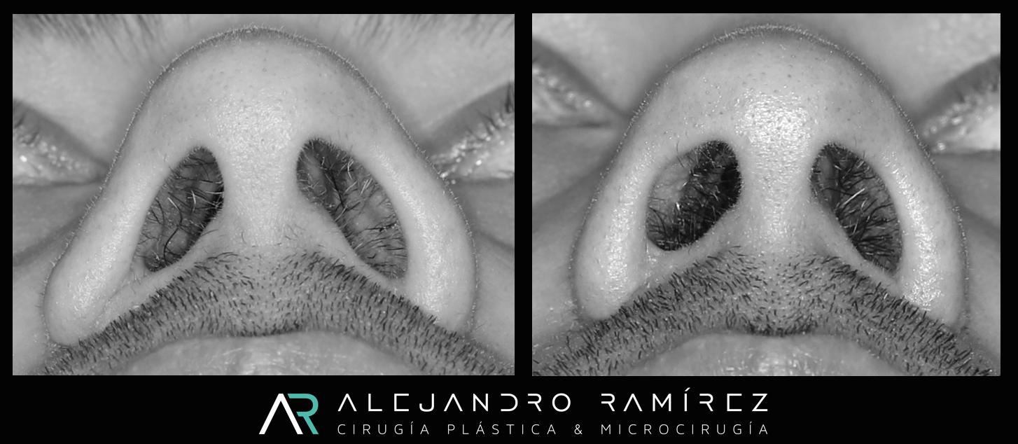 Reconstrucción estética de la nariz