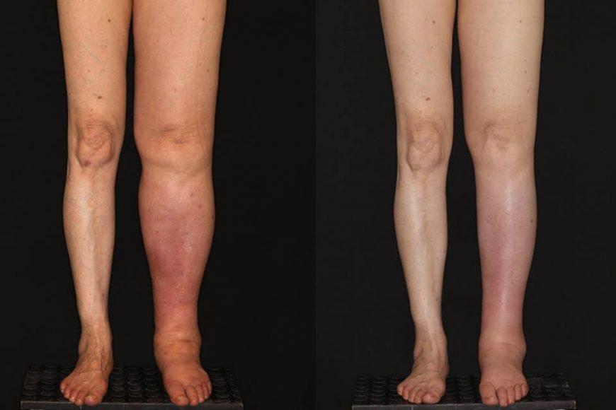 Trasplante de ganglios para linfedema por cancer cervicouterino