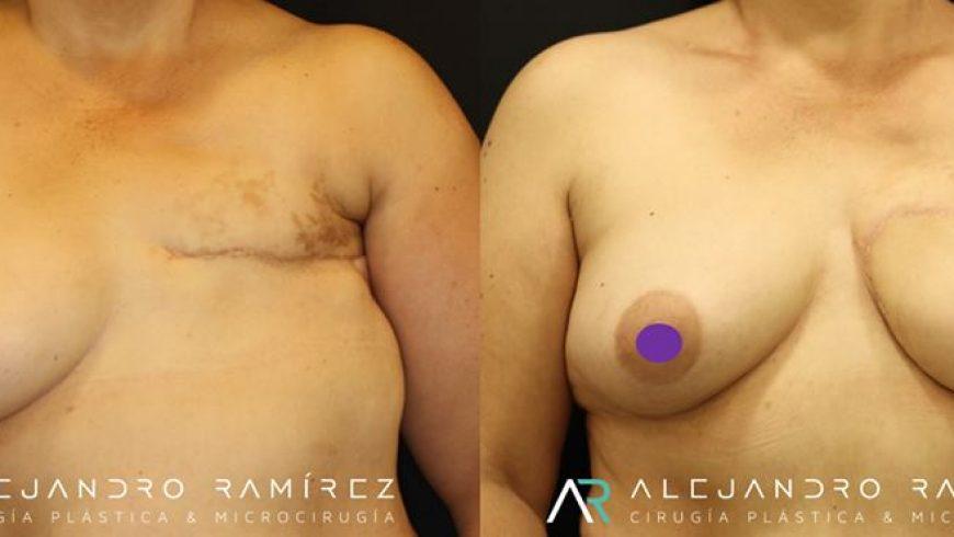 Reconstrucción mamaria con microcirugía, la mejor opción de reconstrucción